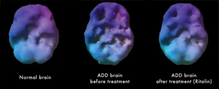 ADHD SPECT Image