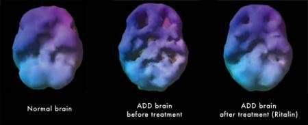 ADHD SPECT Image